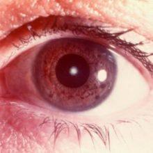 Диагноз «катаракта»
